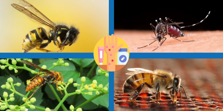 Puntura d'insetti, come comportarsi