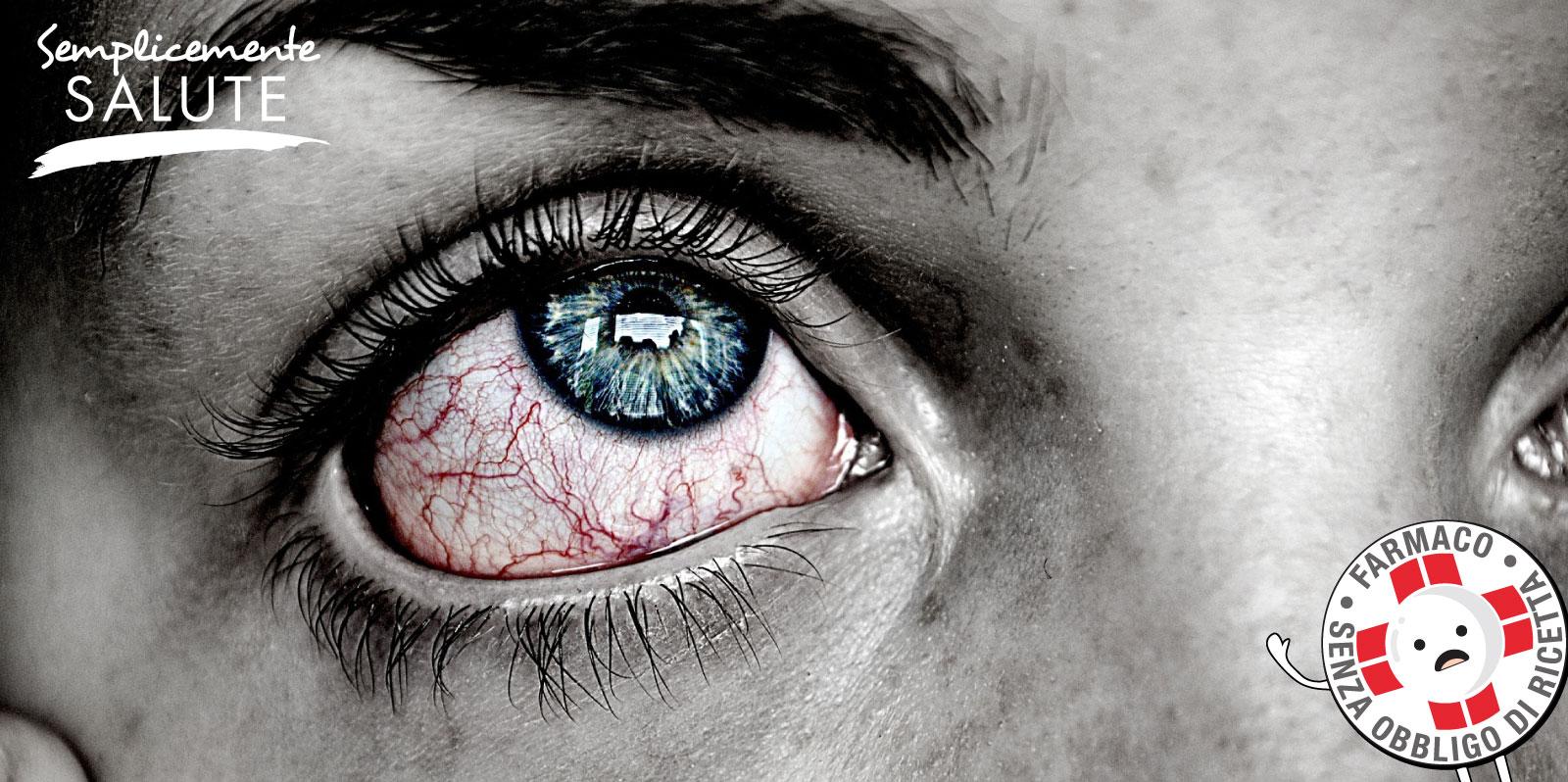Aiuto mi bruciano gli occhi