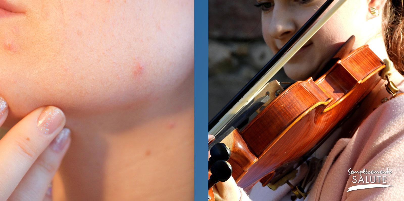 Esiste anche acne del violinista